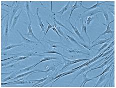毛乳頭細胞