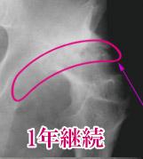 関節症 軟骨 貧乏ゆすり 2
