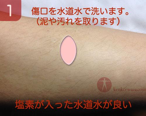 傷口を縫わずに治す 1