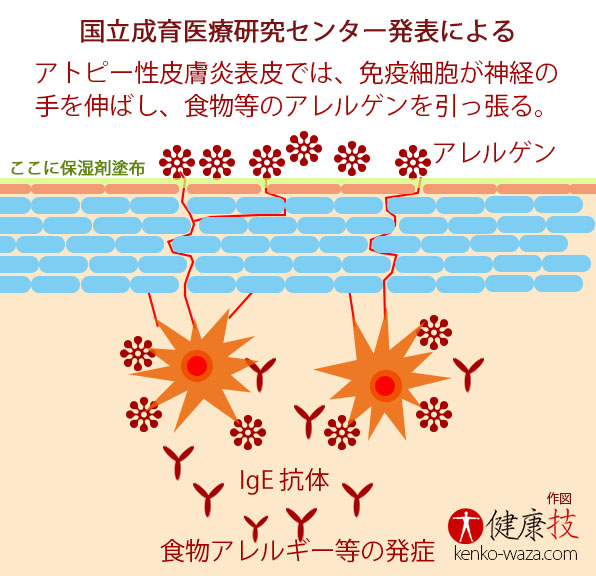 乳児に保湿剤を毎日全身に塗布 アトピー性皮膚炎