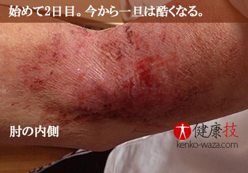 アトピー性皮膚炎腕2