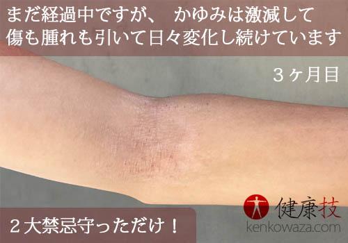 アトピー性皮膚炎腕4