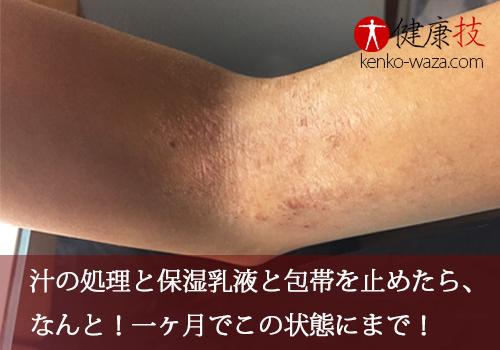 アトピー性皮膚炎腕5