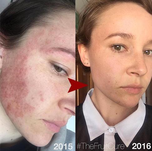 アトピー性皮膚炎果物療法6