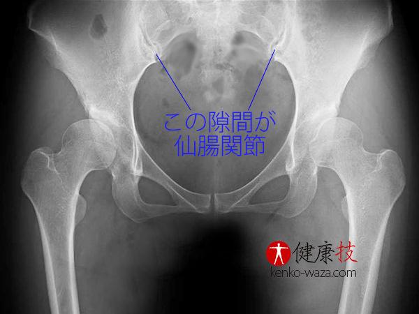仙腸関節矯正