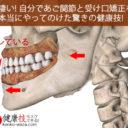 凄い! 自分であご関節と受け口矯正を本当にやってのけた健康技7