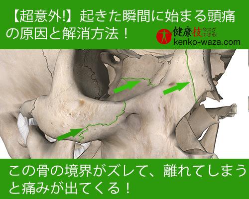 【超意外!】起きた瞬間に始まる頭痛の原因と解消法2健康技!