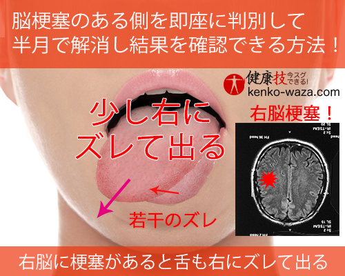脳梗塞のある側を即座に判別して 半月で解消し結果を確認できる方法!3健康技