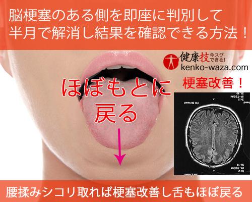 脳梗塞のある側を即座に判別して 半月で解消し結果を確認できる方法!5健康技