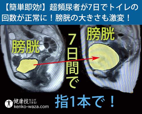 【簡単即効!】超頻尿者が7日でトイレの 回数が正常に!膀胱の大きさも激変!健康技1