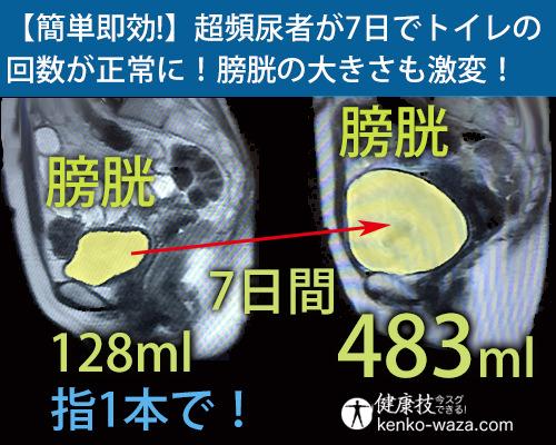 【簡単即効!】超頻尿者が7日でトイレの 回数が正常に!膀胱の大きさも激変!健康技