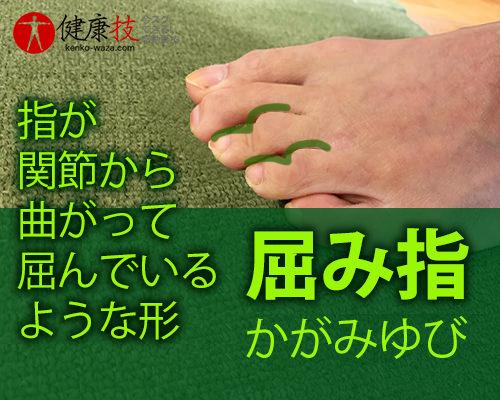 【大注目!】外反母趾,股関節痛,膝腰痛が改善し外科手術も回避できた方法!健康技4