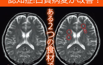 【希望!】認知症兆候!怖い白質病変が2つの食材で改善できた!健康技1