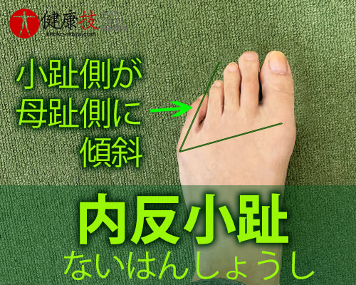 【大注目!】外反母趾,股関節痛,膝腰痛が改善し外科手術も回避できた方法!健康技3