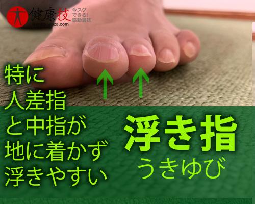 【大注目!】外反母趾,股関節痛,膝腰痛が改善し外科手術も回避できた方法!健康技5
