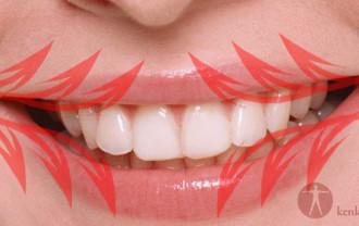 歯茎 ツボ1