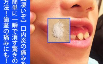 【凄いぞ】口内炎の痛みを簡単に一瞬で消す驚きの方法!歯茎の痛みにも!健康技1
