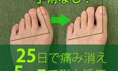 【大注目!】外反母趾,股関節痛,膝腰痛が改善し外科手術も回避できた方法!健康技